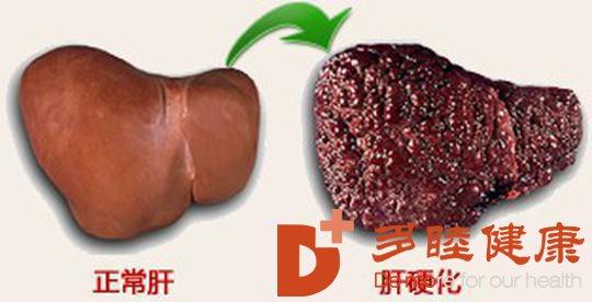 日本干细胞:肝硬化患者一定要避免营养不良