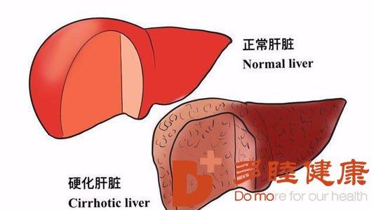 日本干细胞:早期肝硬化到底有什么症状呢?