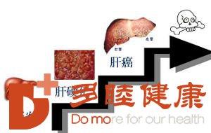日本干细胞;这四类人群更易患肝硬化平时需多注意