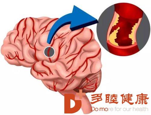 干细胞有望治愈脑梗塞造成的神经损伤