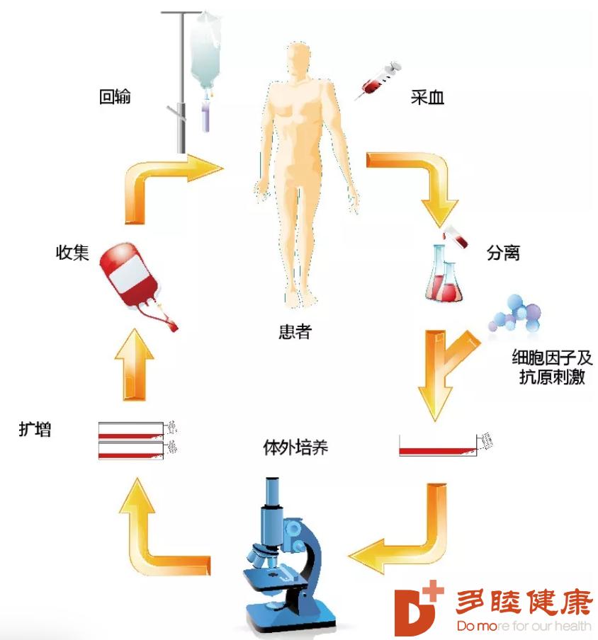NK细胞免疫疗法治疗让钱先