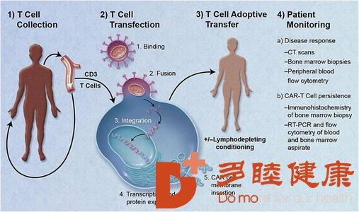 晚期肠癌病灶被清除--免疫