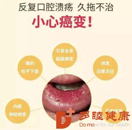 这种口腔溃疡别不在意,有可能是癌症早期信号