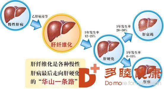 日本干细胞:肝硬化主要有哪些症状要及早发现治疗