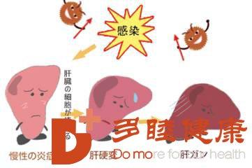 日本血液净化:早期肝硬化这7种症状最容易被忽视