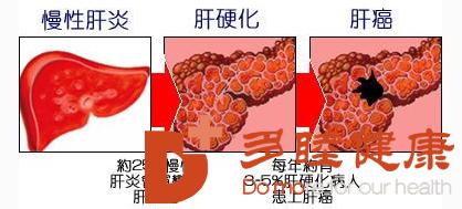 日本肝硬化:肝炎没有治疗是造成肝硬化发生的原因