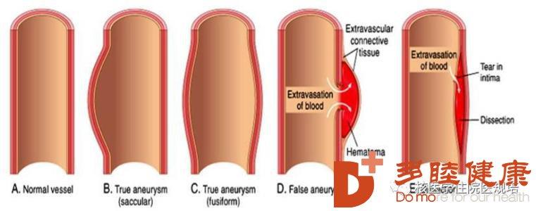 日本血液净化:主动脉夹层的预防护理措施有哪些
