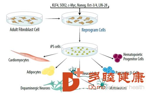 海外医疗推进iPS细胞治疗方法走向应用