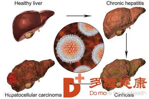 日本干细胞:肝硬化出现中晚期症状 病情波动要治疗