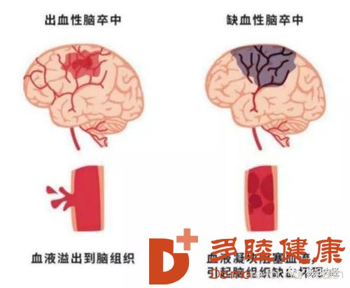 日本血液净化:只吃素也有可能患动脉粥样硬化