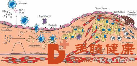 日本血液净化:关于动脉硬化闭塞症,你不知道的几点!