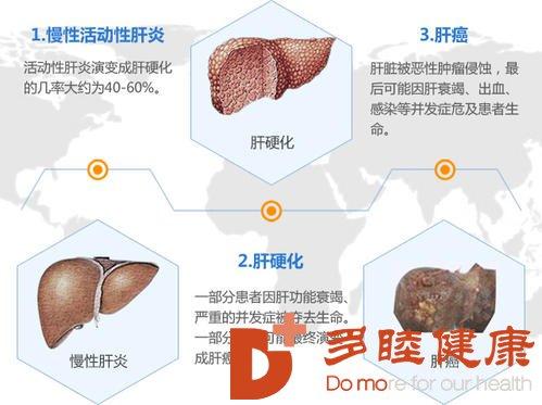日本干细胞;肝病是如何发展成为肝硬化的