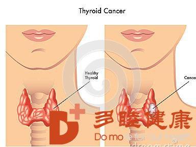 日本专家建议体检时要注意甲状腺的异变