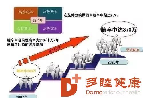 日本干细胞丨让脑梗致死率将大大下降!