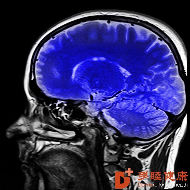 日本干细胞-干细胞疗法干预阿尔茨海默病的3大机理