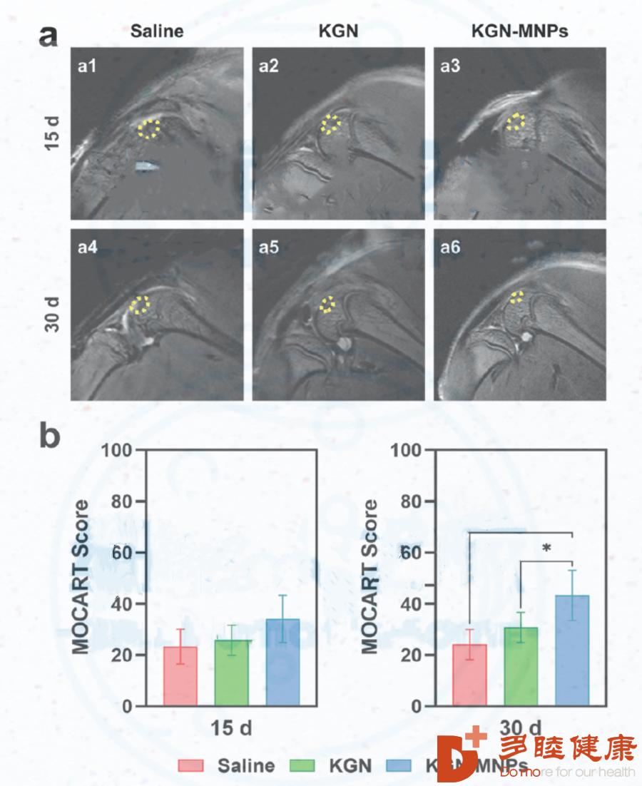 日本干细胞-干细胞关节再生术治疗运动造成的关节损伤